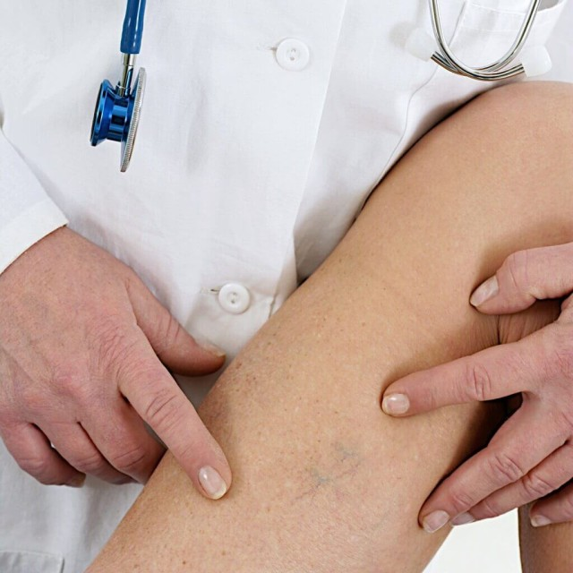 Если варикоз не лечится, со временем на коже возникают трофические язвы