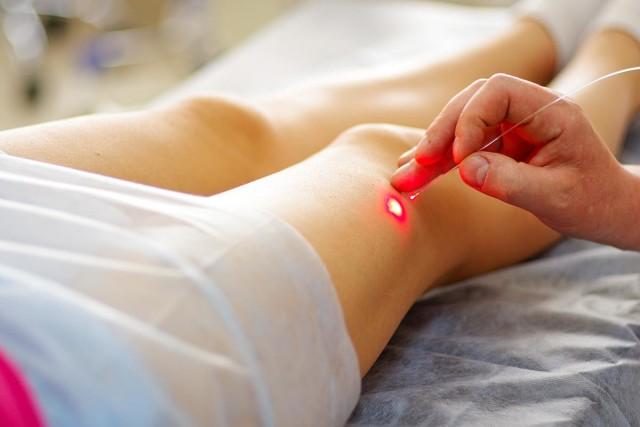 Заболевание поражает вены нижних конечностей, прямой кишки и семенного канатика