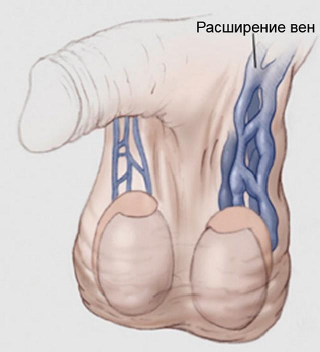 Кровь из левой вены яичка попадает в левую вену почки под углом 90 С