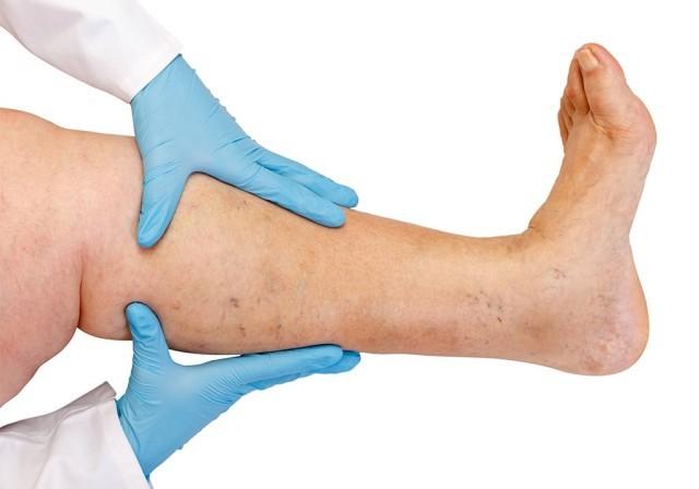 I83.1 Варикозно расширенные вены нижних конечностей с воспалительными осложнениями