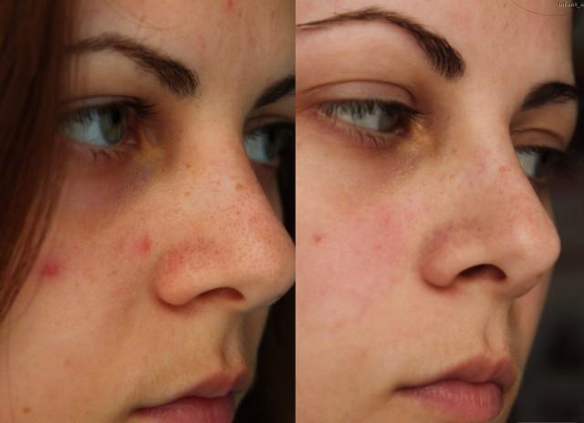 Это касается проведения агрессивных косметологических процедур, которые способны повредить верхний слой эпидермиса, сделать его более чувствительным