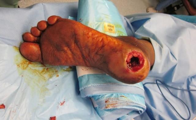 Заболевание спровоцировано нарушением процесса питания тканевых покровов