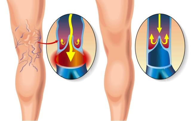 Как правило, он развивается в нижних конечностях на фоне затяжного варикоза и венозной недостаточности