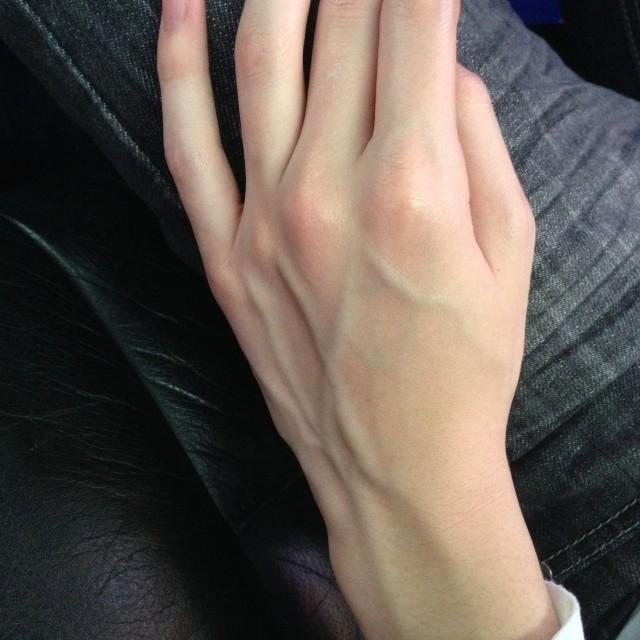 Проступающие под кожей сосуды можно часто увидеть у мужчин, чья деятельность связана с большими физическими нагрузками