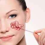 Как убрать сосуды на лице — Уход за лицом