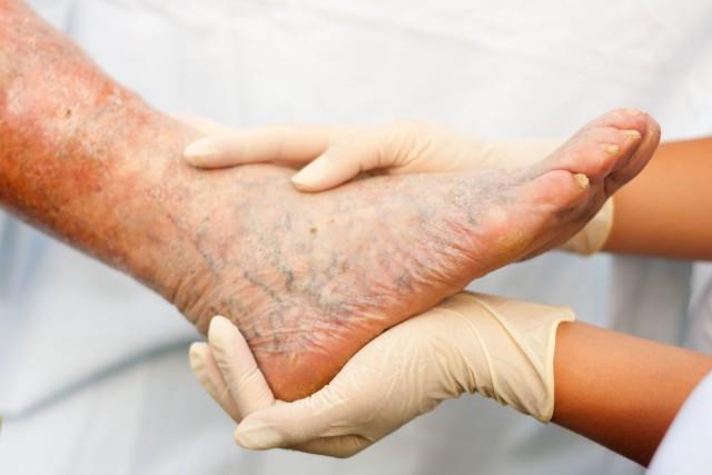 Раздражение и зуд ног — это один из первых симптомов варикозной болезни