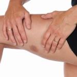Васкулит аллергический симптомы и лечение