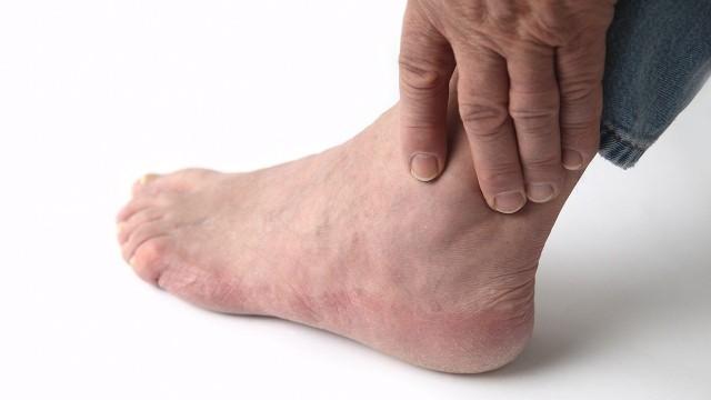 Течение такой болезни всегда острое, характеризуется чрезмерным проявлением всех симптомов и может быть опасным