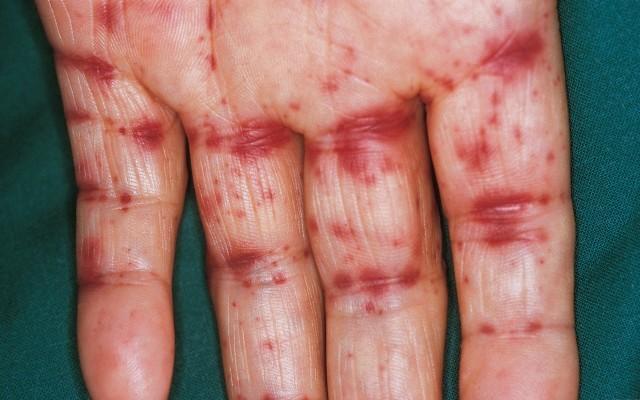 Геморрагический васкулит МКБ 10 (по международной классификации болезней десятого пересмотра) входит в группу заболеваний под кодом D69.0 Аллергическая пурпура