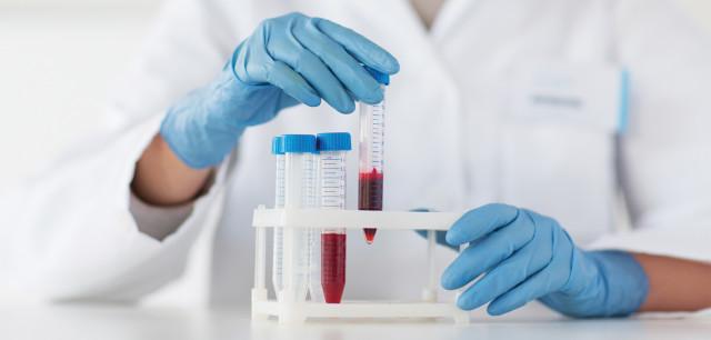 Исследование показателей свертывающей системы крови помогают выявить внутрисосудистую активацию процессов