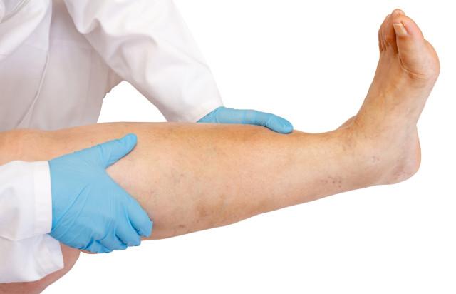 Также причины, по которым они возникают, связаны с повреждением нервной, костной и мягких тканей