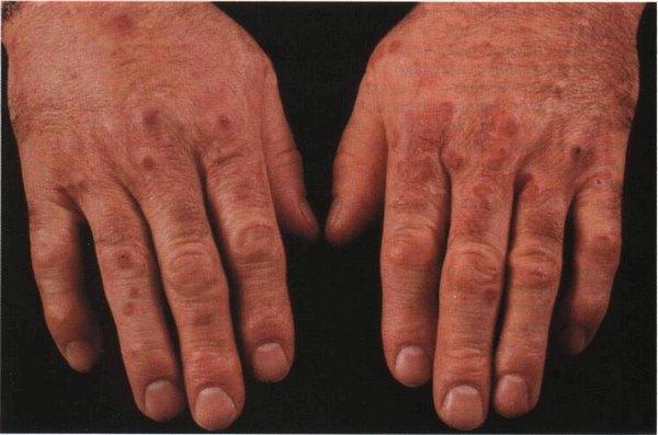 Системные васкулиты отягощаются поражением кожи, почек, сердца, легких, суставов, органов зрения и т. д