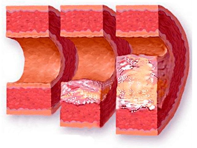 Атеросклероз может являться патоморфологической основой ИБС, ишемического инсульта, облитерирующего поражения нижних конечностей