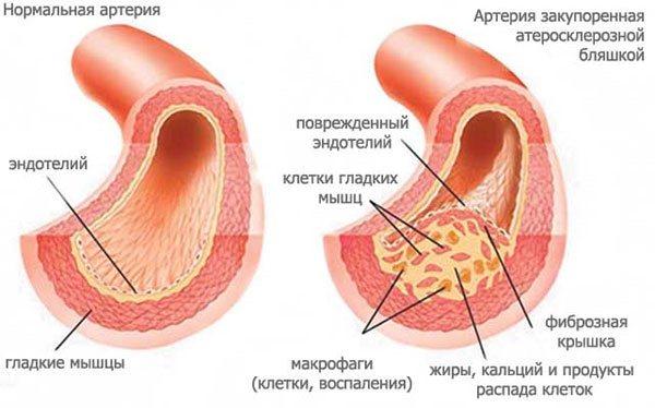 При нормальных условиях, внутренние стенки сосудов постоянно остаются гладкими, обеспечивая беспрепятственную циркуляцию