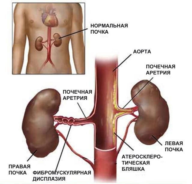 Она характера для гломерулонефрита, нефросклероза, пиелонефрита и других почечных недугов