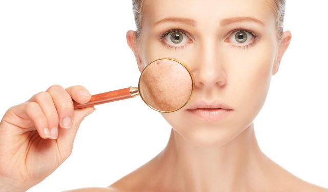 Существуют определенные требования по уходу за чувствительной кожей, склонной к образованию телеангиэкстазий