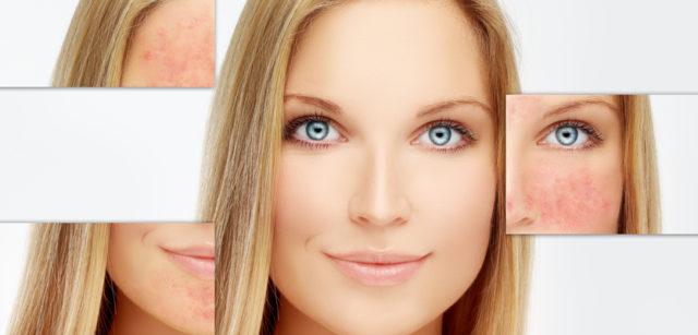 Интенсивный гель используется как препарат для глубокого очищения и успокоения лица