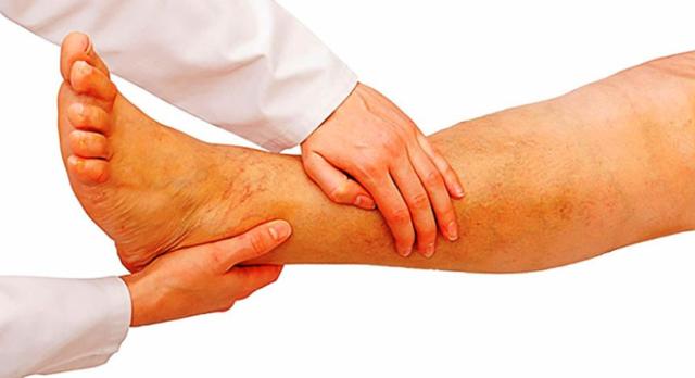 Это повышенная свертываемость крови, изменения структуры стенки сосуда, замедление кровотока