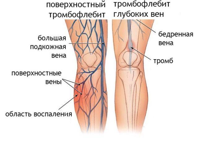 Могут поражаться глубокие вены, но случается и тромбоз поверхностных вен, который еще называется «тромбофлебит»