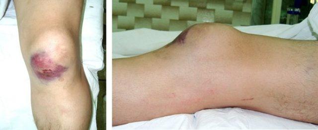 Значительная деформация суставов, нарушение их функций при этом не наблюдается