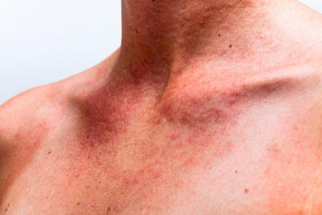 Помимо них иногда заболевание перекидывается и на сосуды близлежащих органов
