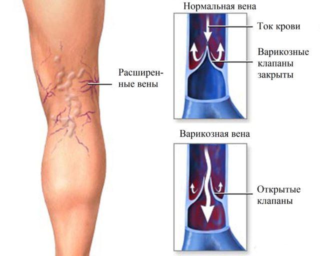 Внешние признаки варикоза проявляются в виде синюшных вен, выпирающих на ногах