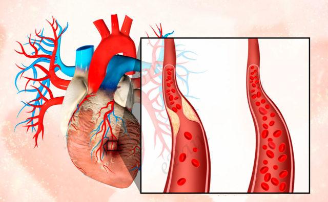 Это связано со значительной функциональной нагрузкой, поскольку отсюда выталкивается кровь под большим давлением в аорту