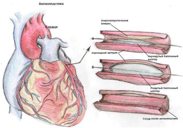 Характерным симптомом некроза в сердце также является увеличение температуры