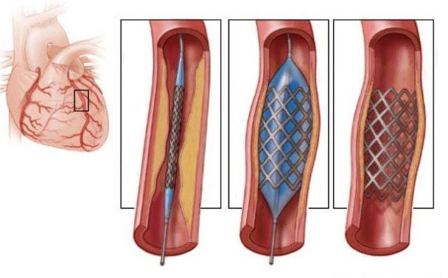 Наиболее эффективными являются операции, восстанавливающие нормальный кровоток в стенозированной или закупоренной коронарной артерии