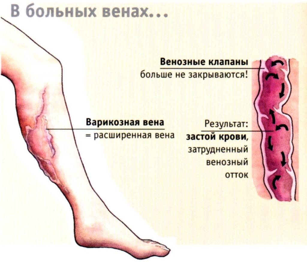 Варикозная болезнь – это увеличение вен, связанное с нарушением кровотока и недостаточностью венозных клапанов