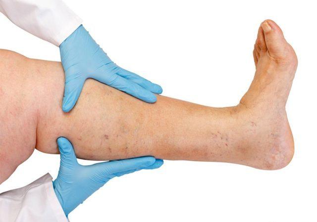 Общий анализ крови. При проверке анализа доктор обращает внимание на количество эритроцитов и гемоглобина