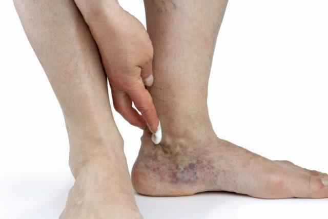 Это может спровоцировать кровотечение, аллергическую реакцию, жжение и другие негативные проявления
