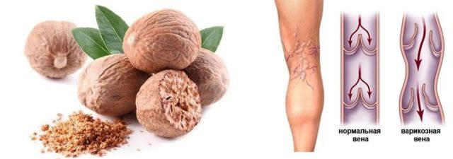 Исцеляющие особенности мускатного ореха при варикозе многогранны
