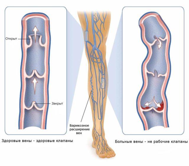 Болезнь достаточно распространенная, поэтому многих интересует вопрос, какие лекарства от тромбофлебита наиболее эффективные