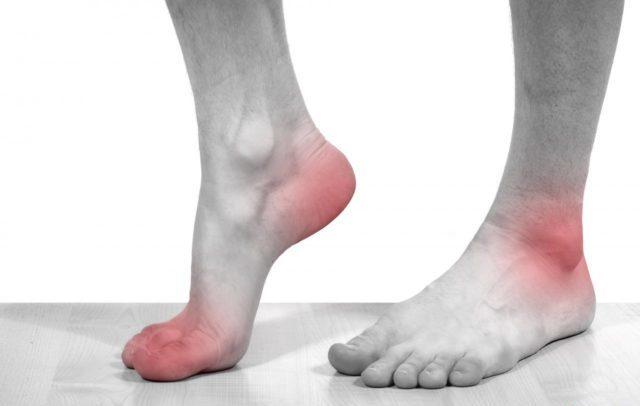 Второе место по распространенности занимают флебиты, являющиеся осложнением абсцесса, инфицированной раны
