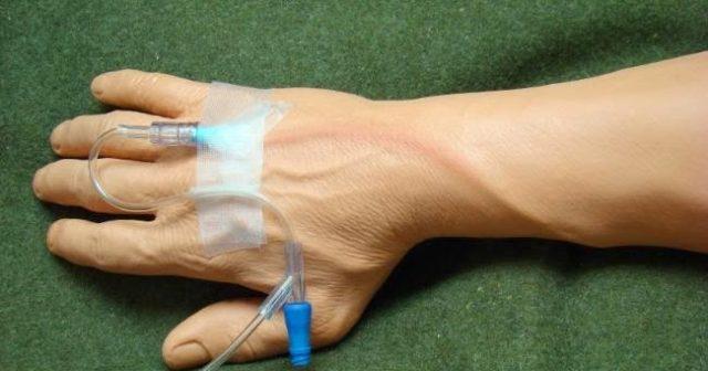 Проводится общее и местное противовоспалительное лечение, физиотерапевтические процедуры