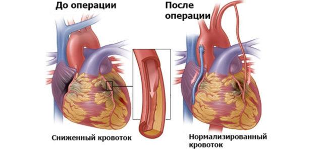 Для проведения операции по установлению в артерию стента требуется очень высокая хирургическая квалификация врача и специальное операционное оборудование