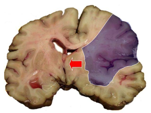 В медицине её ещё называют церебральной ишемией