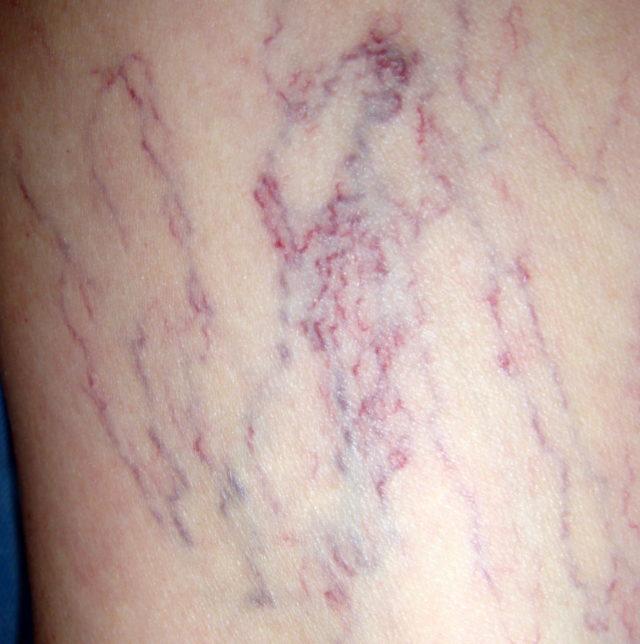 Данное заболевание не является варикозной болезнью, потому как не затрагивает глубокие вены