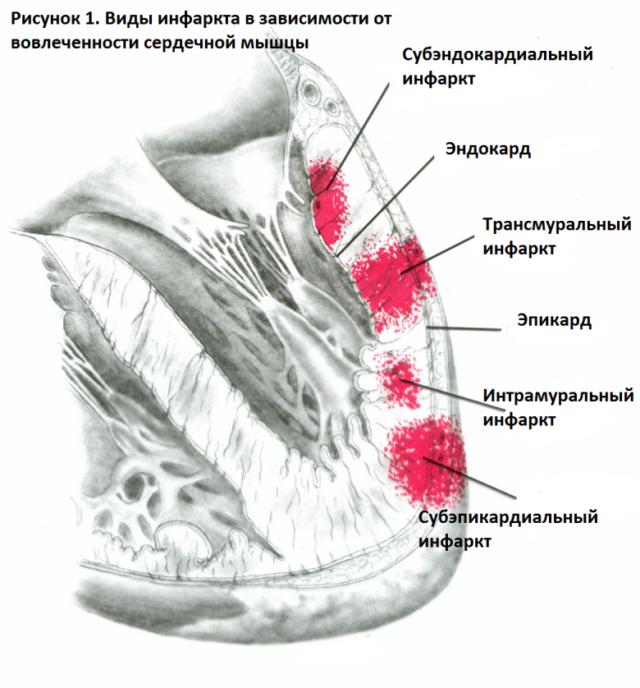 Некротический очаг, то есть зона, клетки в которой отмерли, подверглись некрозу, пронизывает стенку сердца насквозь