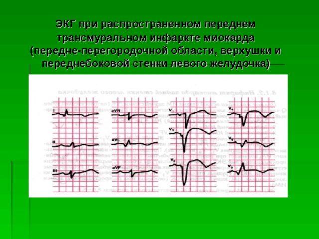О площади зоны поражения можно узнать на основе анализа крови
