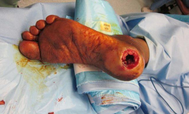 В этом случае причиной заболевания становится нарушение оттока венозной крови от нижележащих отделов нижних конечностей – постепенно развивается застой крови в венах мелкого калибра