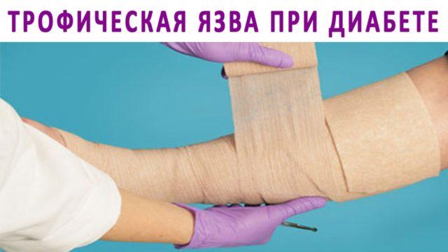 Даже незначительное случайное повреждение кожи «запускает» лавинообразный патологический процесс