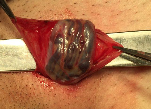 Информация об эффективности хирургических вмешательств противоречивая