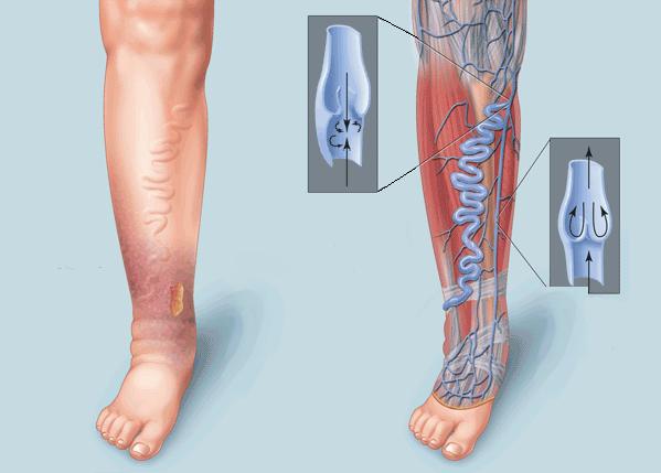 Определенную роль играет сокращение мышц бедра и голени, а также состояние сосудистой стенки