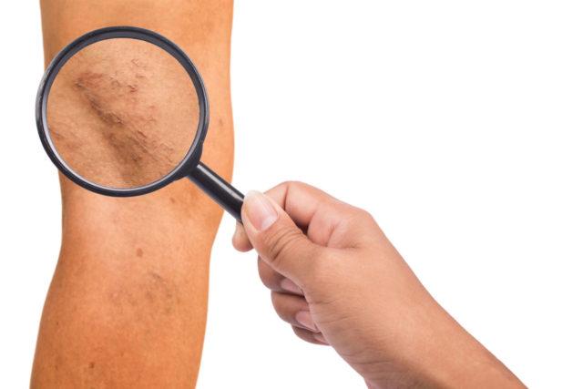 Видны варикознорасширенные вены на ногах и др.