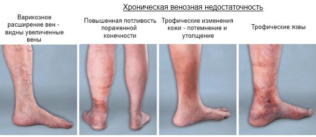В патогенезе развития заболевания принимают участие два основных фактора