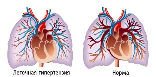 Легочная артерия изначально делится на две ветви и завершается мелкими артериолами